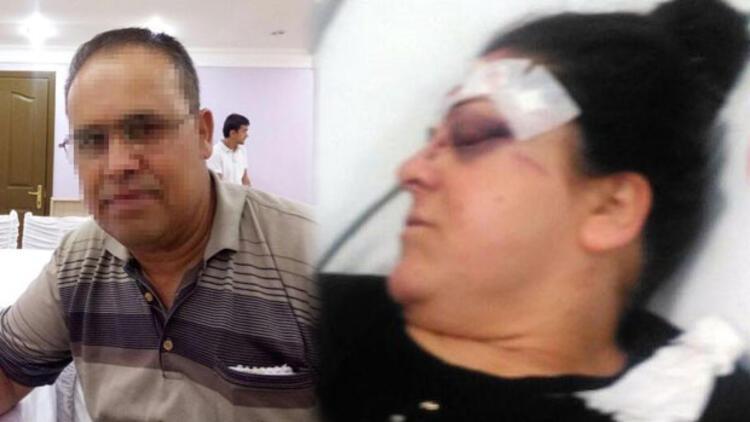 Boşanma davası açan karısına tornavidayla saldırdı