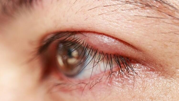 Blefarit (göz kapağı iltihabı) nedir, neden olur?