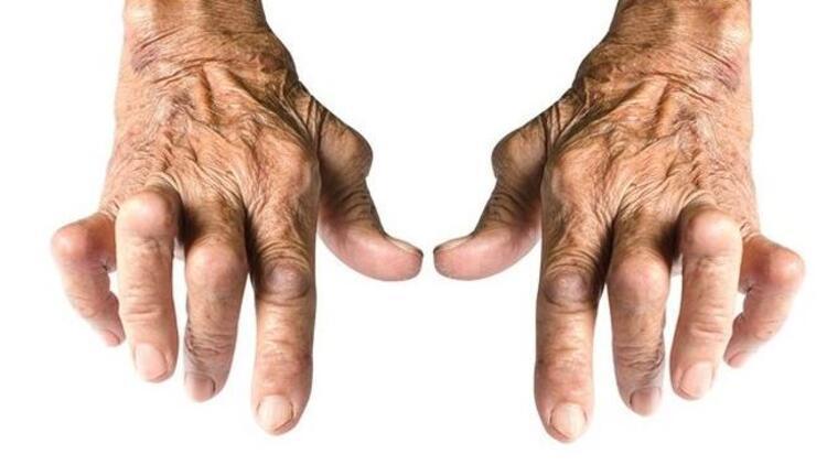 İltihaplı eklem romatizması nedir? Eklem romatizması nasıl anlaşılır?