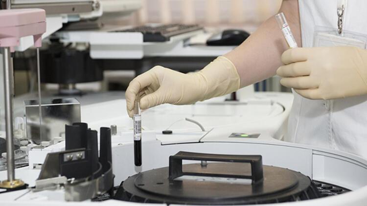Sifiliz (Frengi) hastalığı nedir? Frengi nasıl anlaşılır?