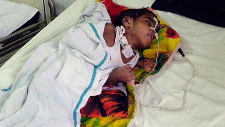 Hindistan'da ensefalit 83 can aldı