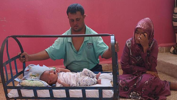 Suriye'de 'mucize bebek' yardım bekliyor