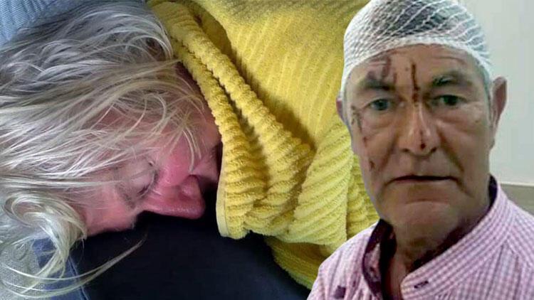 Didim'de İrlandalı çift komşuları tarafından feci şekilde dövüldü.