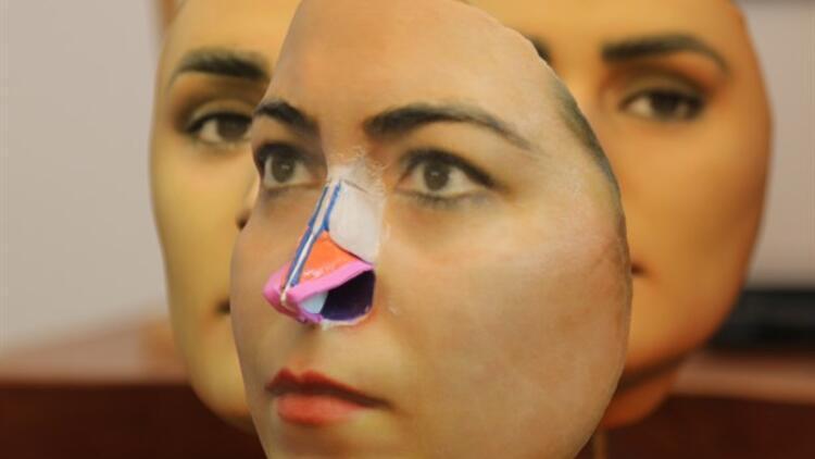 3D Mask Yöntemi ile Burun Estetiği…