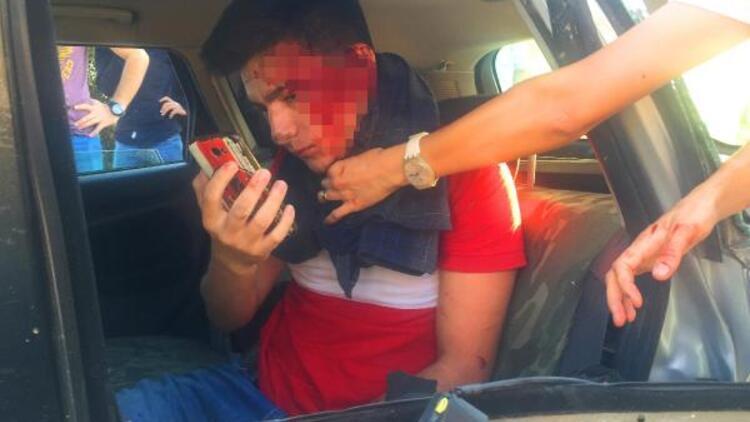 Kazada araçta sıkıştı, yüzünü kontrol etmek için selfie çekti