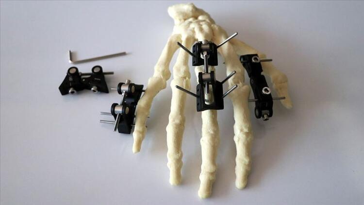 Eklem hareket bozukluklarının tedavisine yerli cihaz