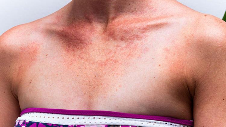 Güneşin İstenmeyen Mirası: Cilt Lekeleri ve Tedavi Yöntemleri