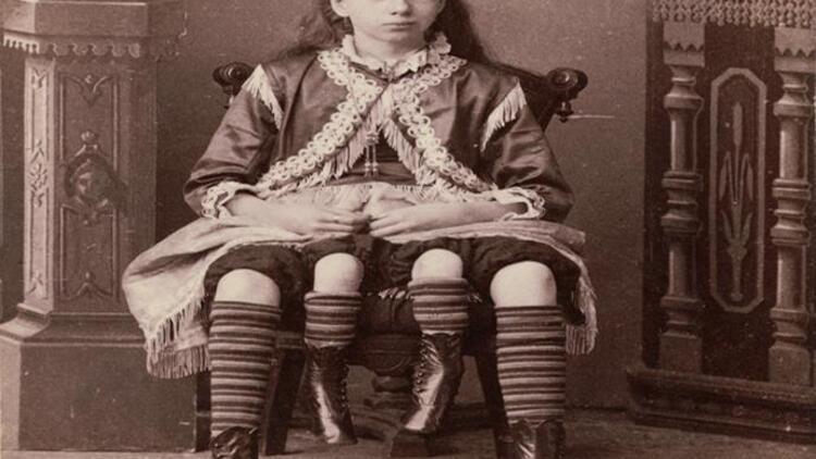 Dört bacaklı kadın Myrtle Corbin kimdir?