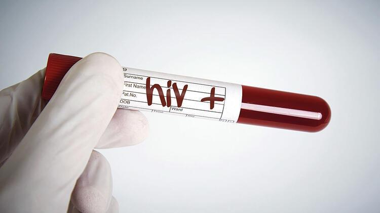 Yeni HIV türü keşfedildi