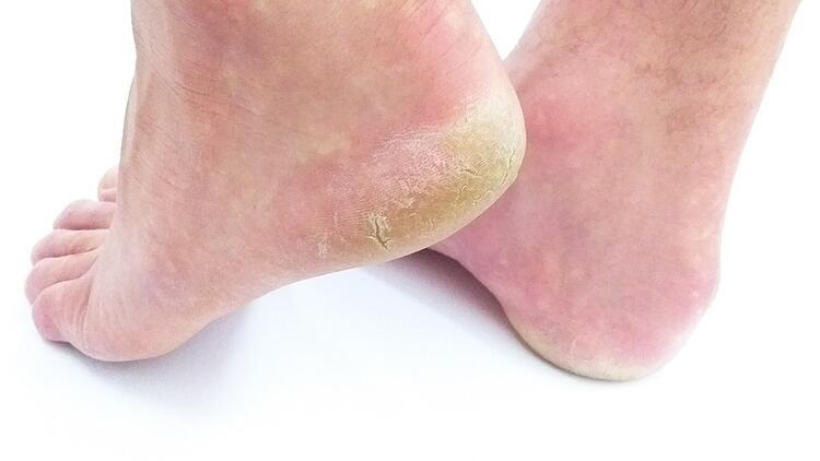 Ayak mantarına ne iyi gelir ve nasıl geçer Ayak mantarı neden olur Evde ayak mantarına iyi gelen bitkisel çözümler ve doğal yöntemler