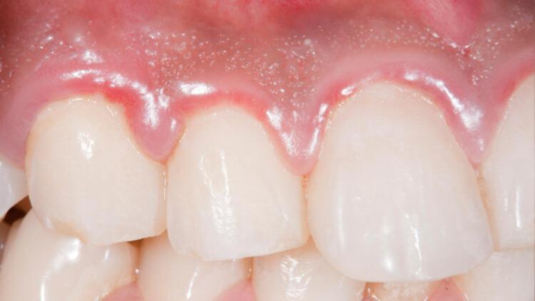 Diş eti iltihabı nasıl geçer? Diş eti iltihabına ne iyi gelir
