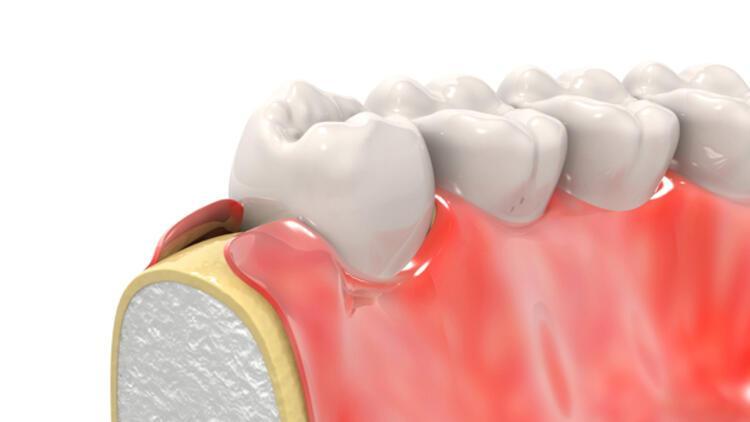 Diş eti çekilmesine ne iyi gelir? Diş eti çekilmesi nasıl düzelir