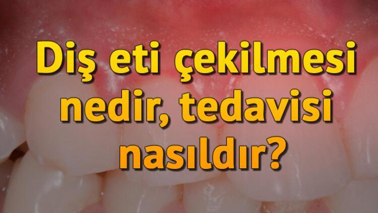 Diş eti çekilmesi nedir, tedavisi nasıldır?