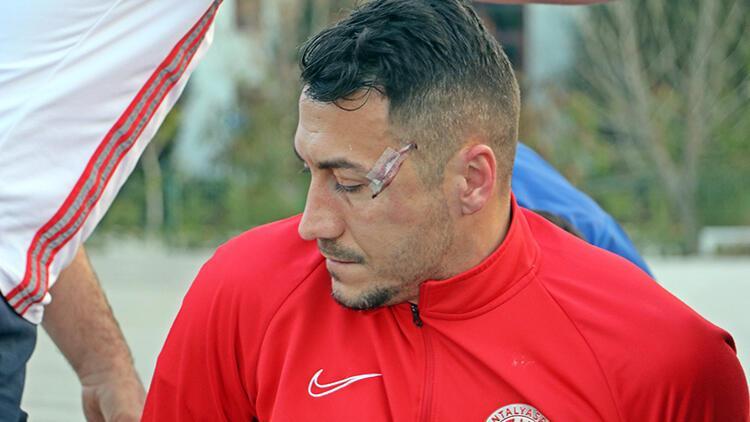 Antalyaspor'dan Adis Jahovic korkuttu! Kafasında çatlak tespit edildi