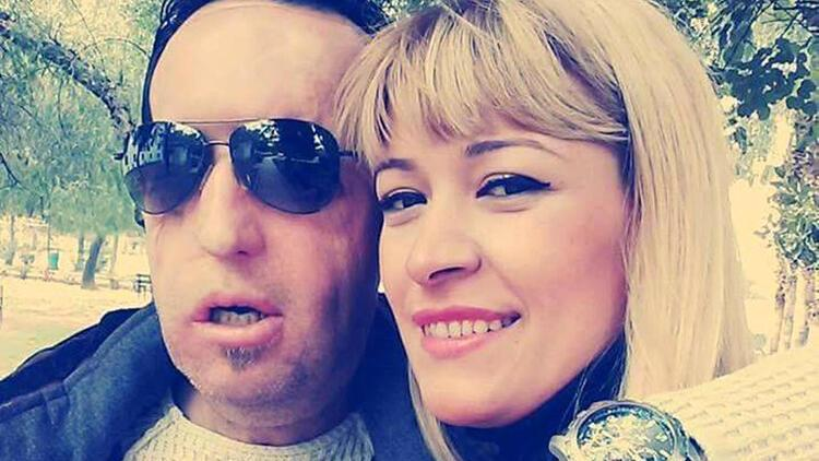 Yüz nakilli Recep Sert ile eşi Esma Sert boşanıyor!