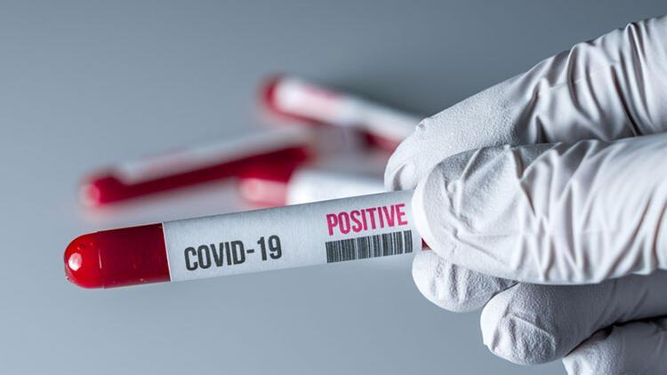 Kalp hastaları koronavirüse karşı daha dikkatli olmalı