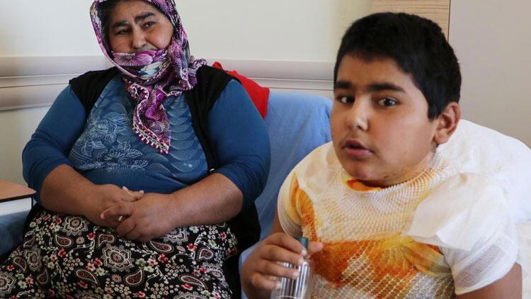 12 yaşındaki Orhan: Kolonyanın yandığını yanarak öğrendim