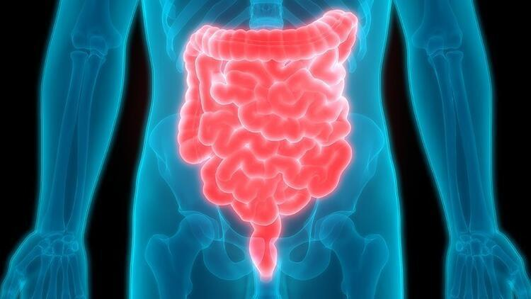 Crohn hastalığı nedir, belirtileri neler? Crohn hastalığı ile ilgili bilgiler