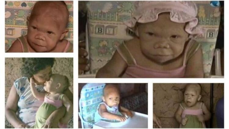Dünya 30 yaşındaki bebeği konuşuyor