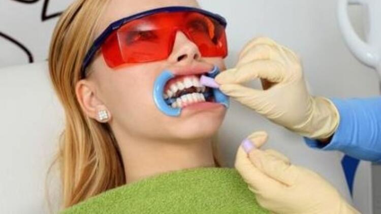 Diş beyazlatma (Bleaching) yöntemleri