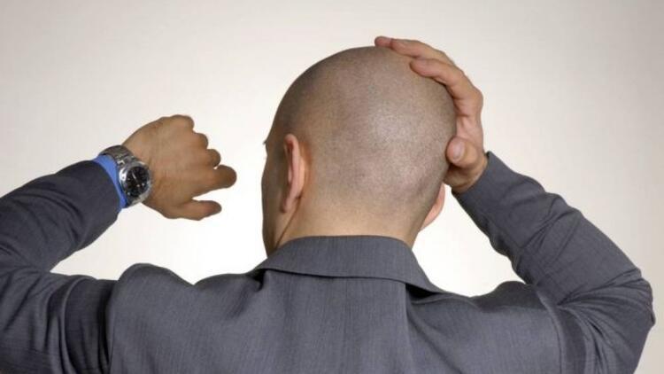 Saç kaybında çığır açacak teknik