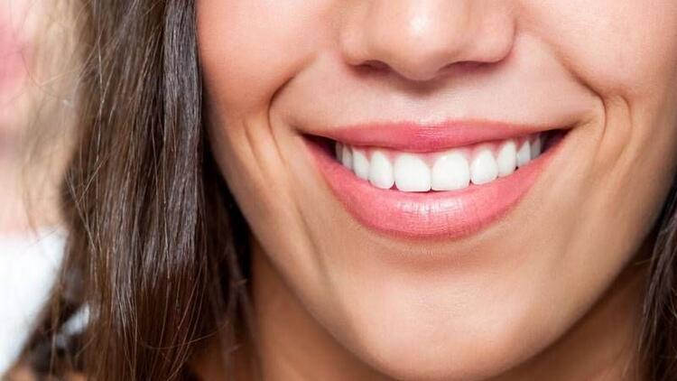 Porselen lamine sayesinde güzel gülüşler...
