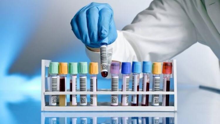 Tek testle 3 farklı kanser türü tespit ediliyor!