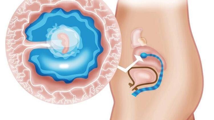 Hamilelikte 5. hafta
