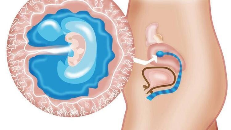 Hamilelikte 6. hafta