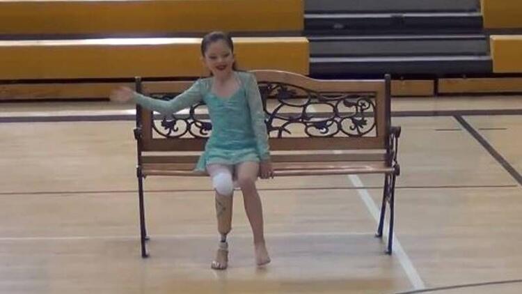 Protez bacağıyla sınır tanımayan inanılmaz kız!