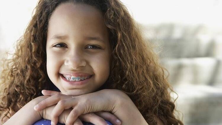 Çocuğunuz hangi tip diş teli kullanmalı?