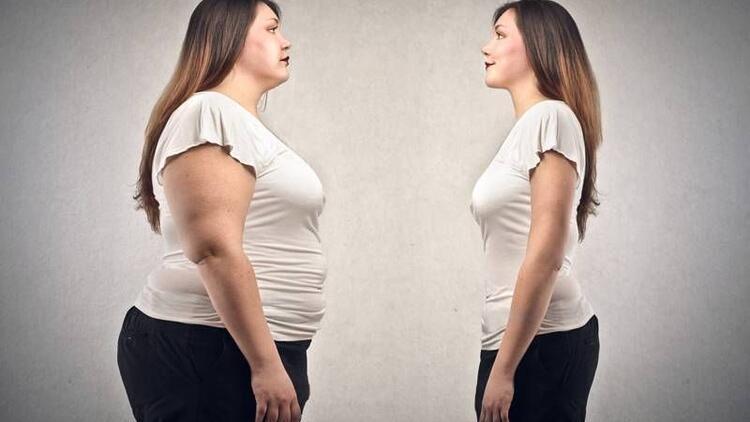 Ameliyatsız obezite tedavi edilebilir mi?