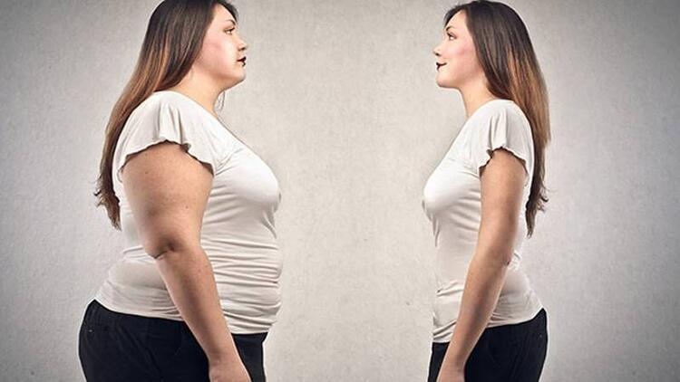 Obezite tedavisinde dikkat edilmesi gerekenler