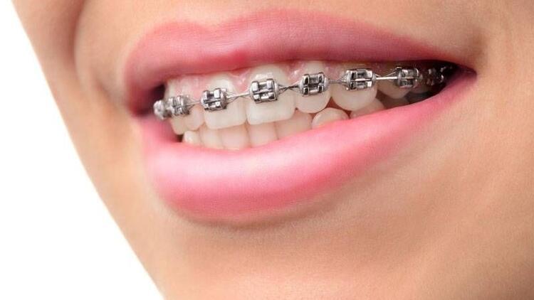 Hızlı diş telleri nedir?