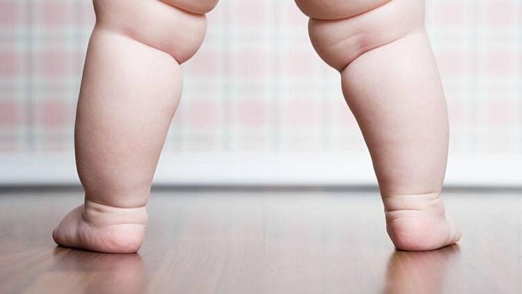 Türkiye'de çocuklarda obezite artışı var mı?