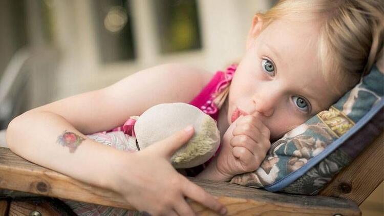 Çocuklarda parmak emme stres işareti midir?