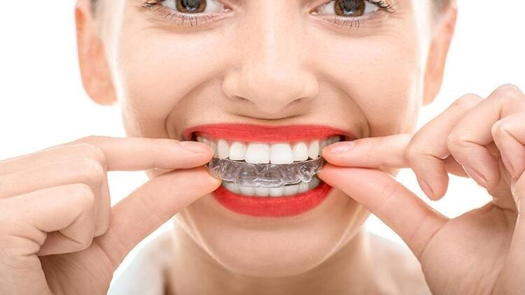 Telsiz ortodontik tedavi