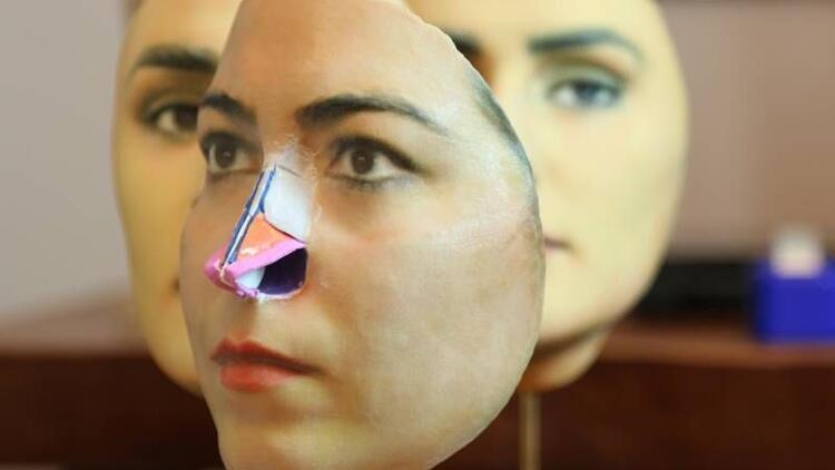 3D mask yöntemi ile burun estetiği