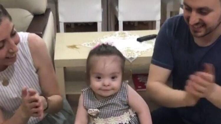 Down sendromlu bebeğin doğum günü sevinci