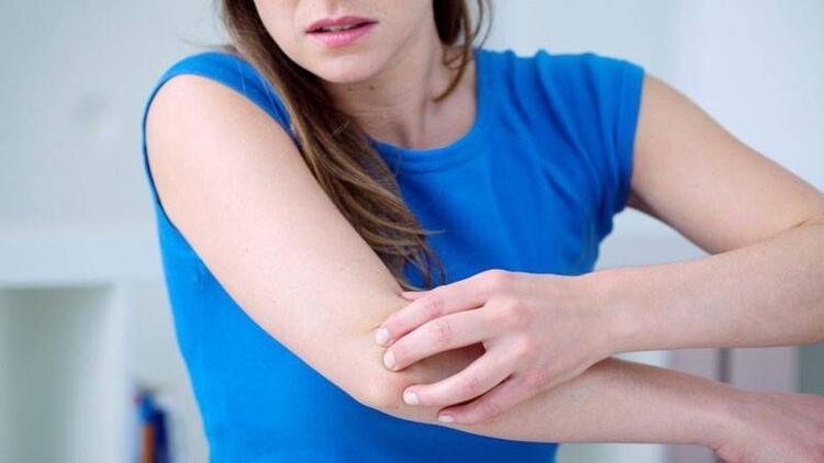 Erişkinlerde kaşıntı atopik dermatit nedeni olabilir