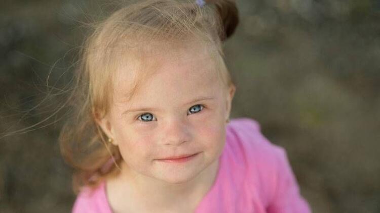 Down Sendromu'nda 1 yaşında müdahale çok geç
