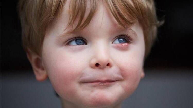 Meraklı çocuklarda arpacık daha sık görülür