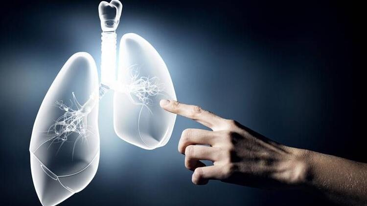 Akciğer kanseri olduğunu öğrenen kişi ne yapmalı?