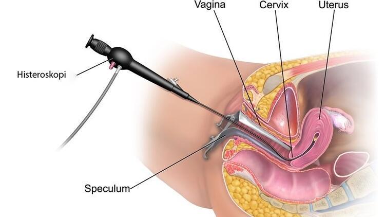 Histeroskopi nedir? Histeroskopi hangi alanlarda kullanılır?