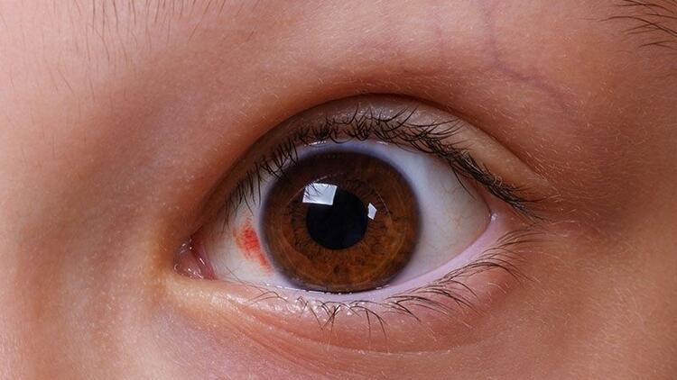 Glokom (göz tansiyonu) nedir? Belirtileri ve tedavisi