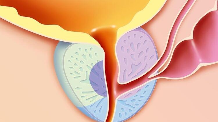 HoLEP (Holmium Lazer) ile prostat cerrahisi