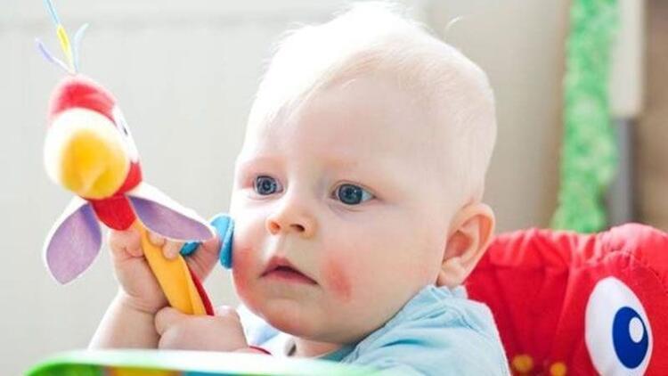 Bebeklerde atopik dermatite karşı etkili öneriler