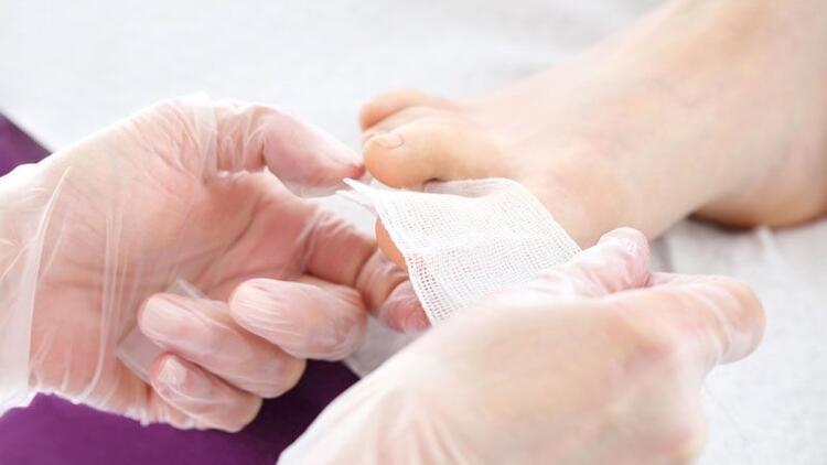 Tırnak batması neden olur? Evde nasıl tedavi edilir?