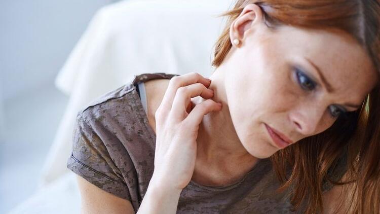 Halk arasında çok yaygın... Egzama neden olur, tedavisi nasıl yapılır?