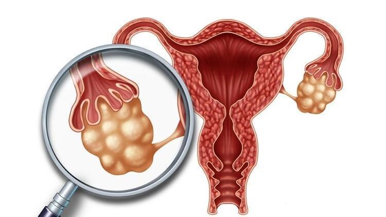Polikistik Over Sendromu nedir? PKOS hastaları hamile kalabilir mi?